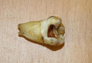 John Lennon's rotten tooth